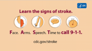 photos of stroke symptoms including face, arms, speech and time to call 911
